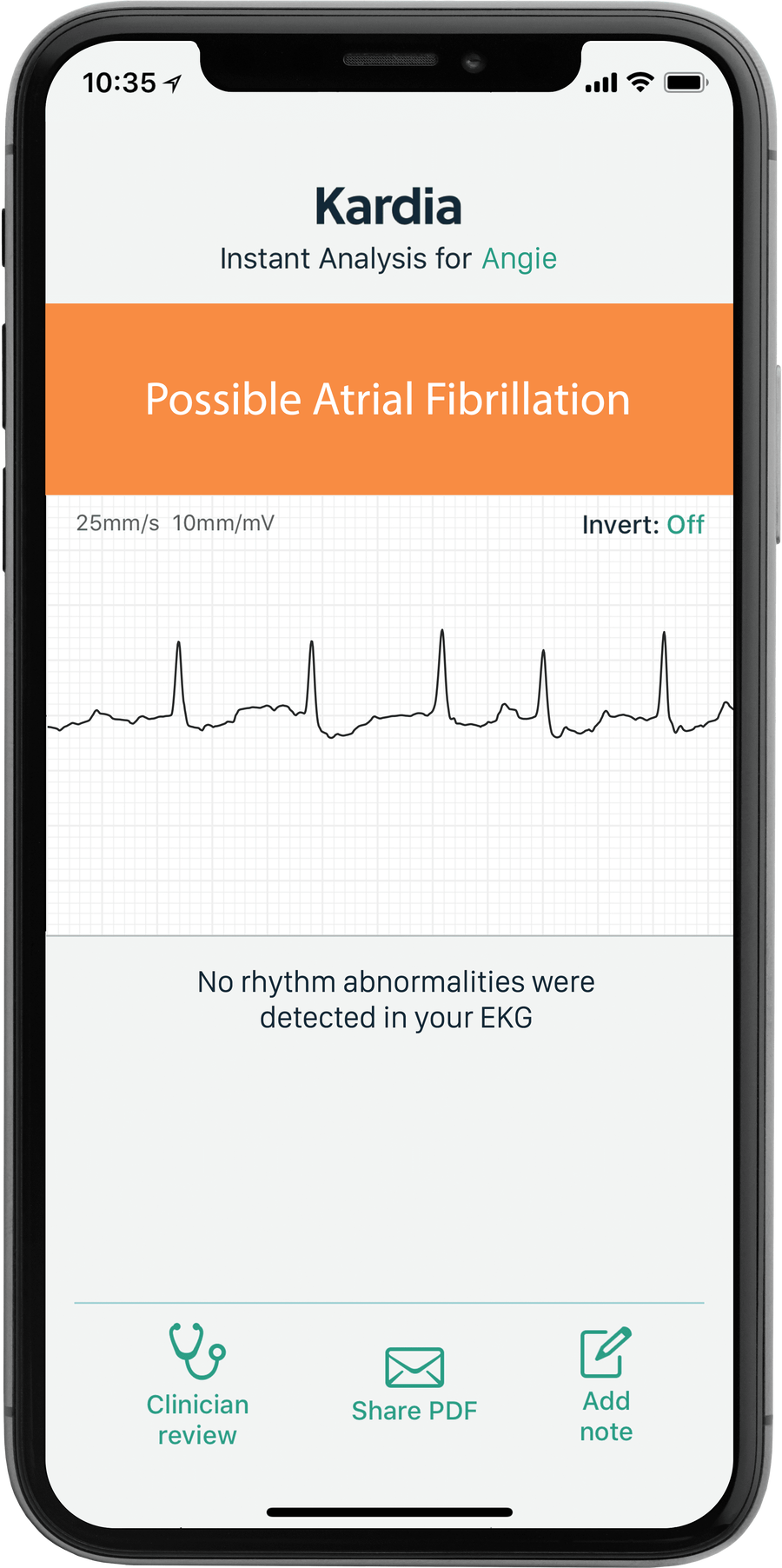 AliveCor KardiaMobile Personal EKG 6L, , large image number 3