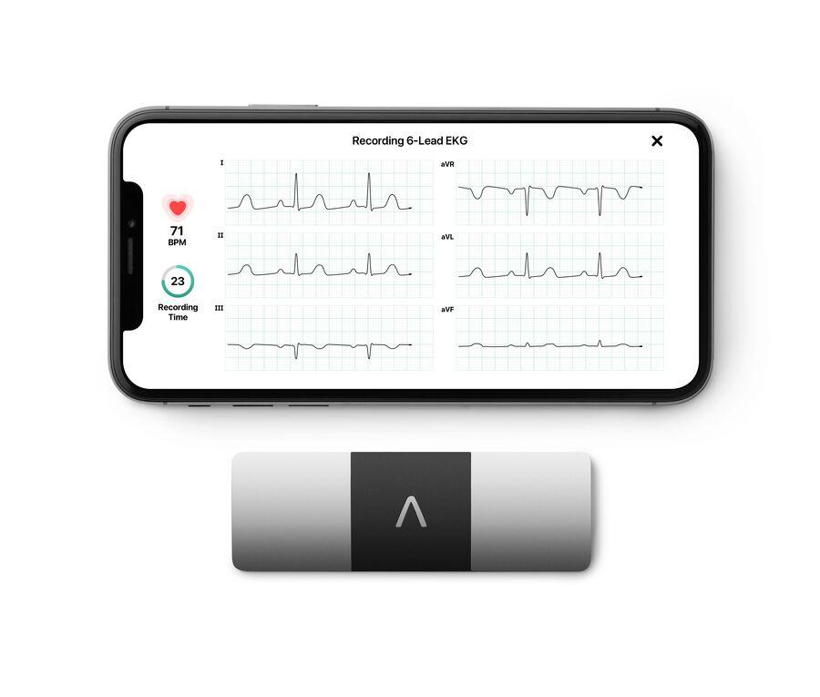 AliveCor KardiaMobile Personal EKG 6L, , large image number 6